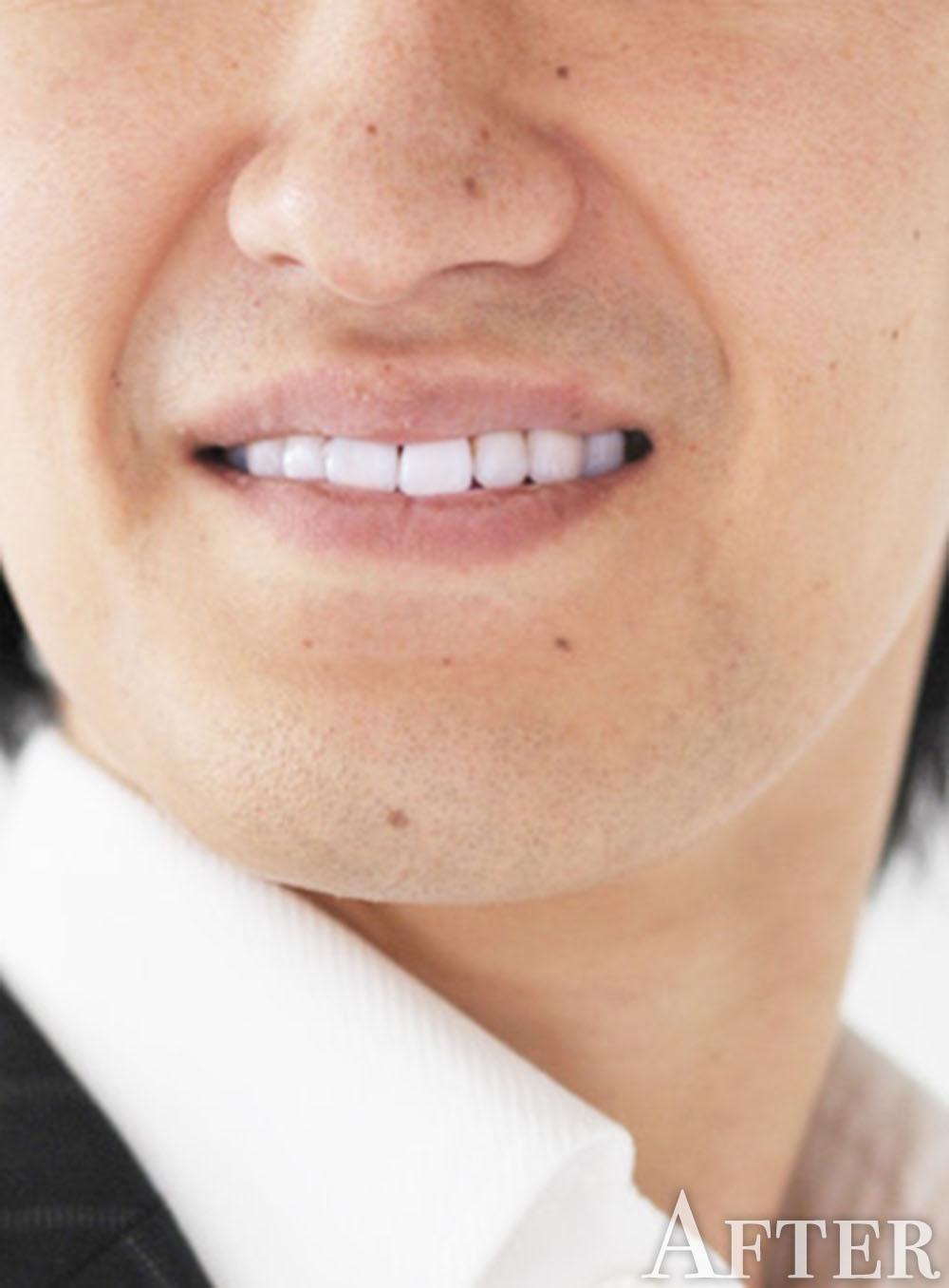 ホワイトニングされた歯