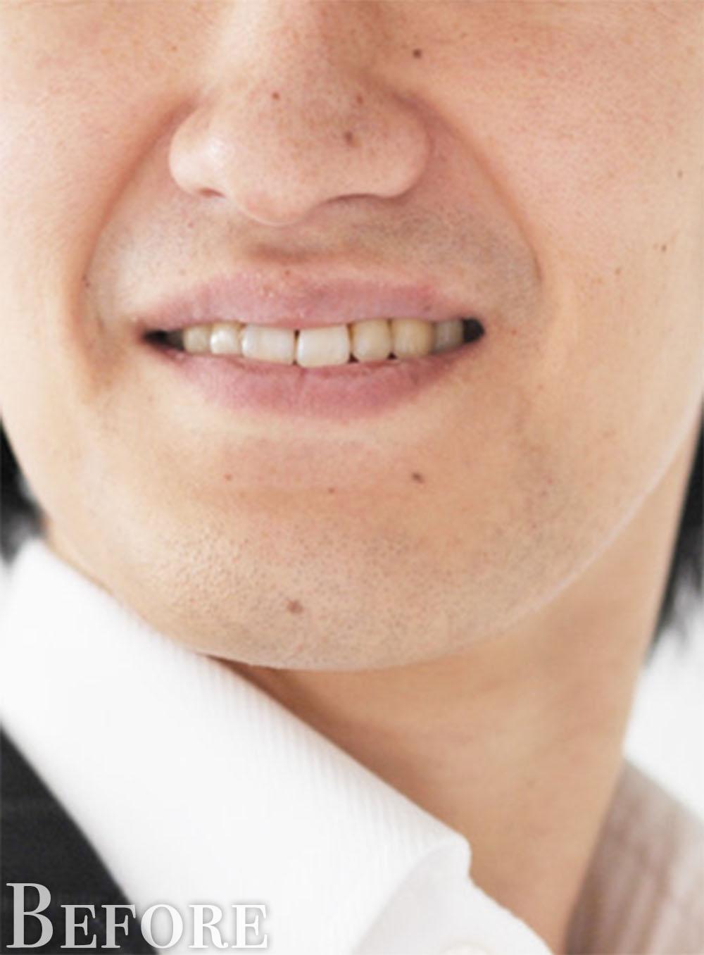 黄色っぽい歯