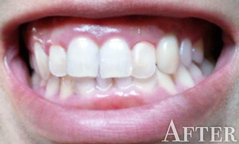 綺麗な歯並び