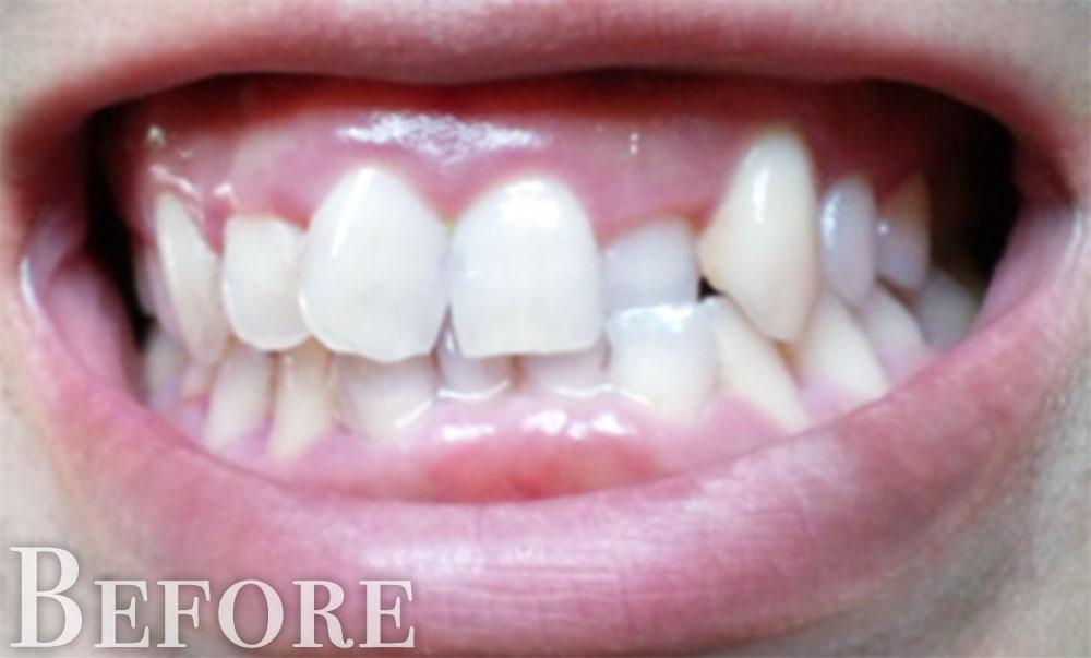 ずれた歯並び