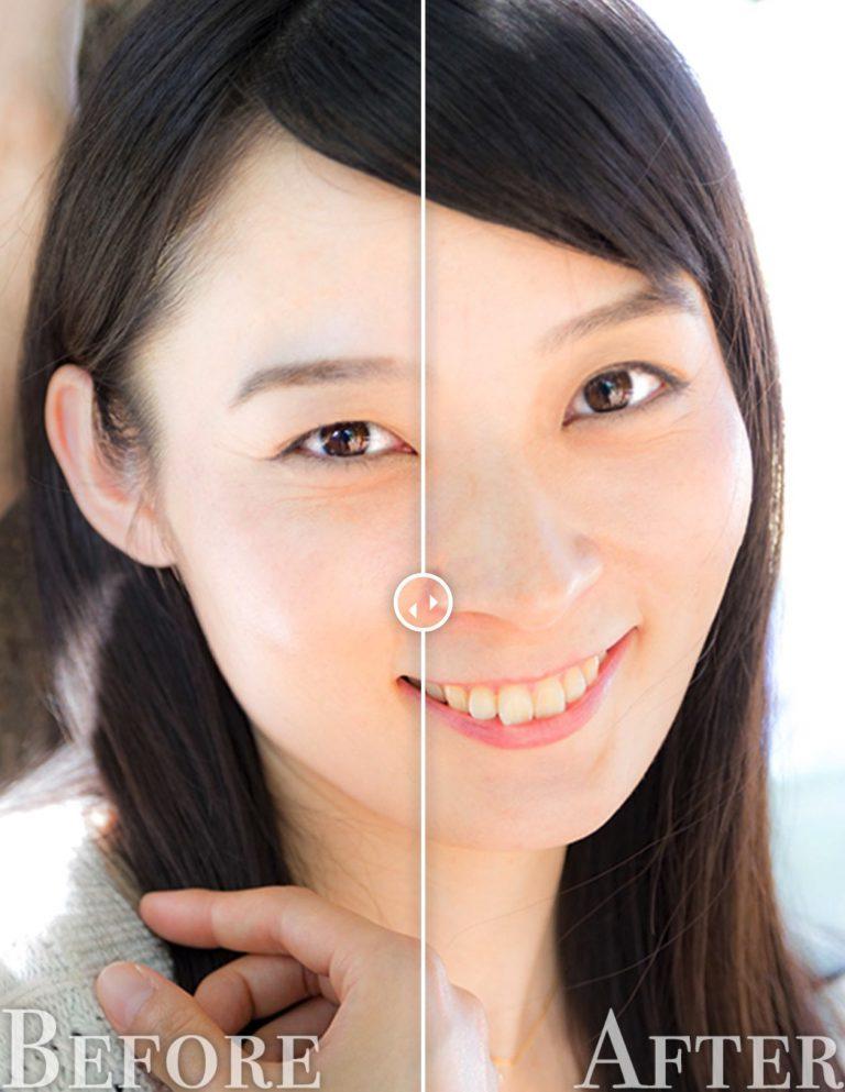 目を大きくする修正before-after