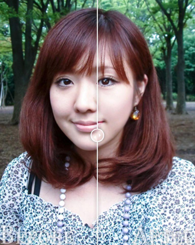 おまかせ美容整形before-after