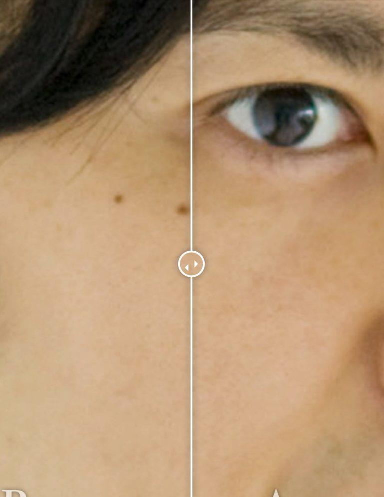 ホクロ除去before-after