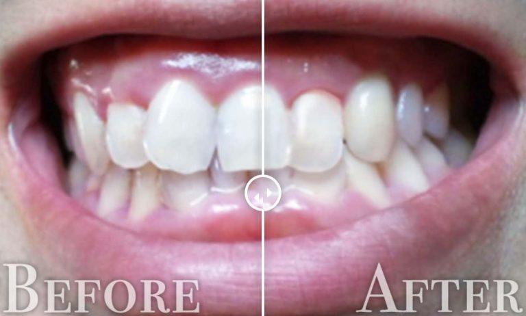 歯並び修正before-after