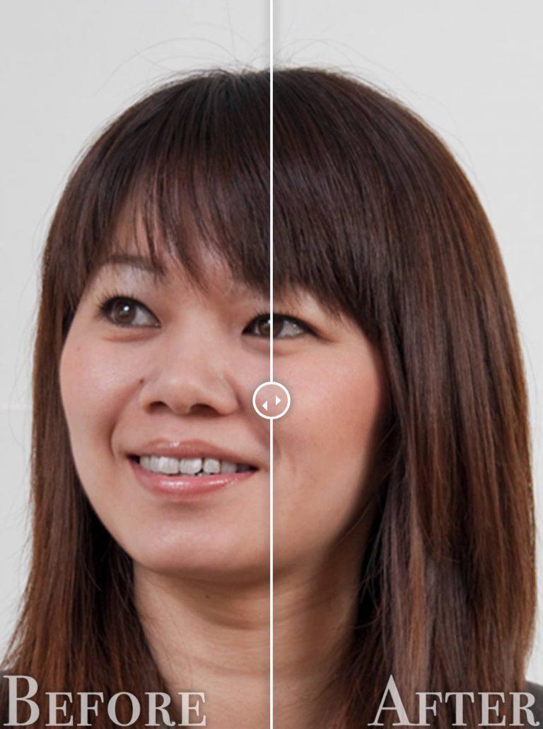 鼻を小さくする修正before-after