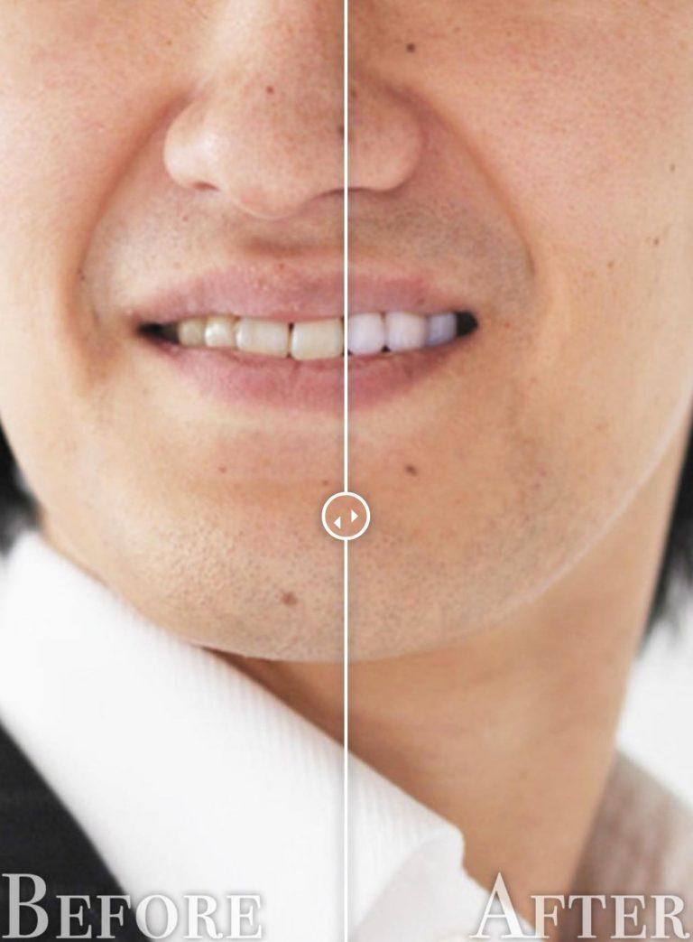 歯のホワイトニングbefore-after